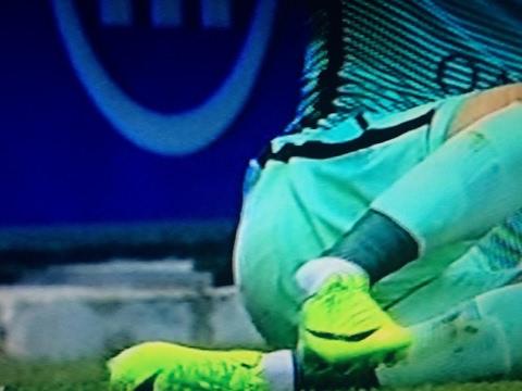 Aleix Vidal HORROR INJURY – Alaves vs Barcelona 11.02.2017 HD